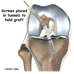 Kỹ thuật mới điều trị tổn thương khớp gối: sử dụng gân đồng loại tạo hình dây chằng