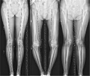 Phục hồi trục chi: yếu tố quan trọng của các phẫu thuật điều trị thoái hoá khớp gối