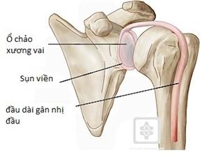 Tổn thương sụn viền và gân nhị đầu dài: 1 trong những nguyên nhân gây đau khớp vai