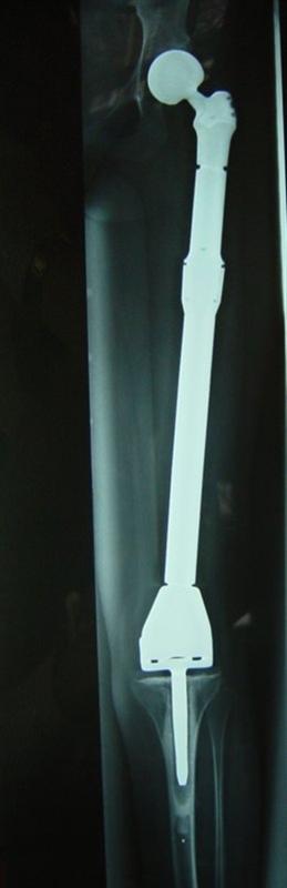 Tạo hình xương khớp trong bệnh lý u xương
