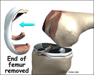 Cắt bỏ phần mặt khớp xương đùi bị tổn thương