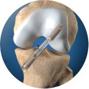 Vít chốt dọc trong đường hầm xương của khớp gối
