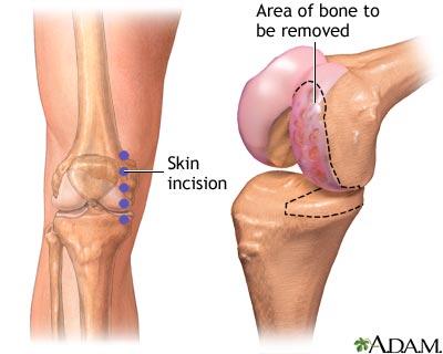Minh họa đường rạch da trong phẫu thuật thay khớp gối